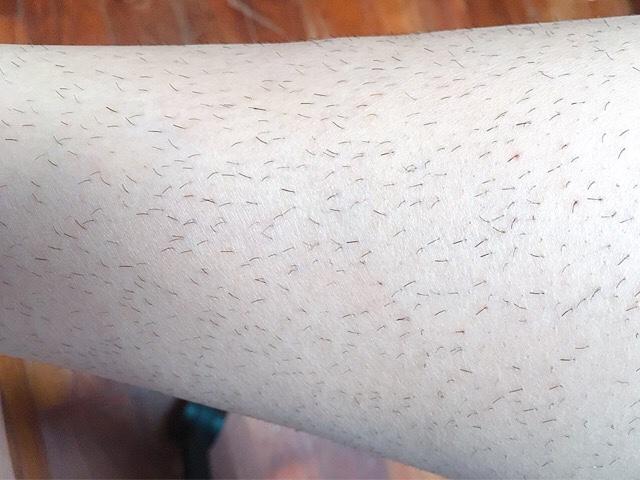 除毛クリームで処理した1週間後のすね毛