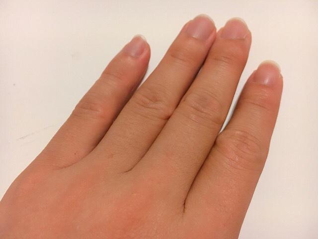 除毛クリームで手の指毛を処理した結果