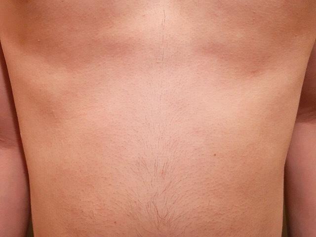 除毛クリームを塗る前の腹毛