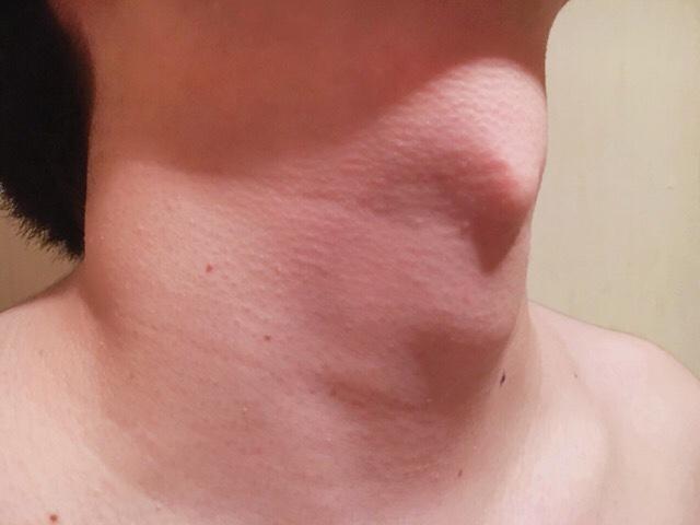 除毛クリームで首毛(喉仏まわり)を処理した結果