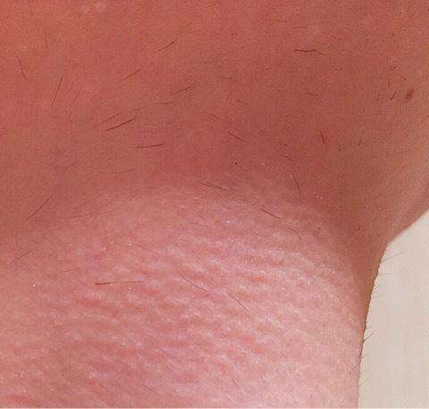 除毛クリームを塗る前の首毛(喉仏まわり)_02
