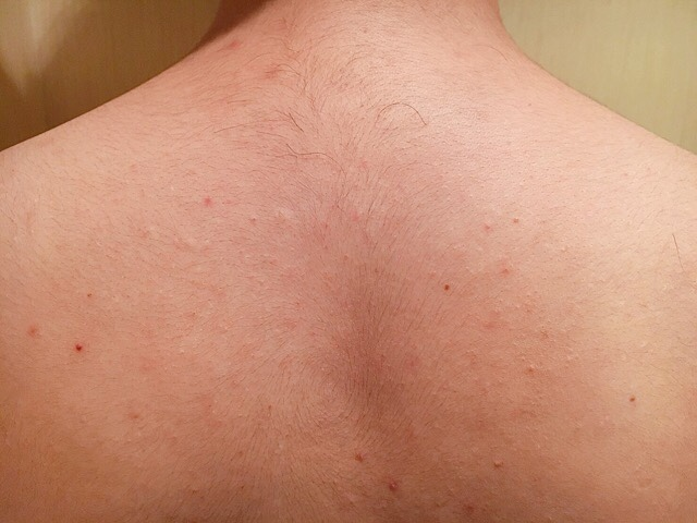 除毛クリームを塗る前の背中の毛