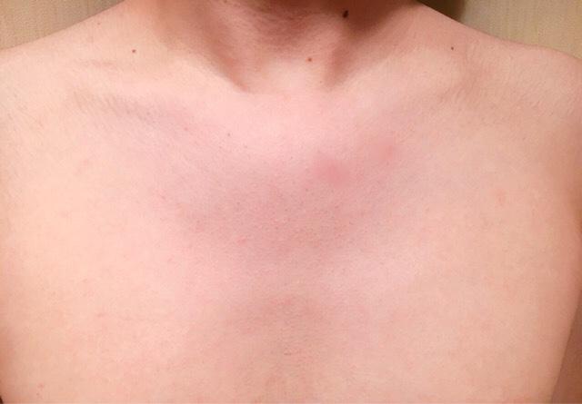 除毛クリームで胸毛を処理した結果