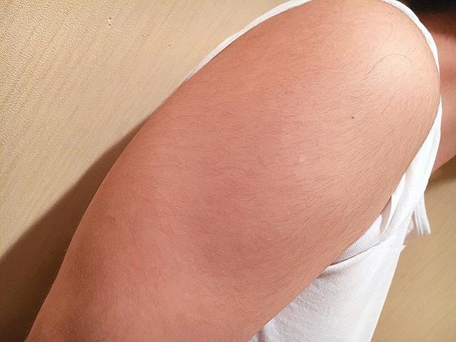 除毛クリームを塗る前の手の毛(二の腕)