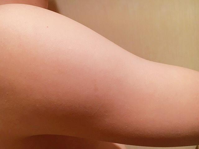 除毛クリームで手の毛(二の腕)を処理した結果