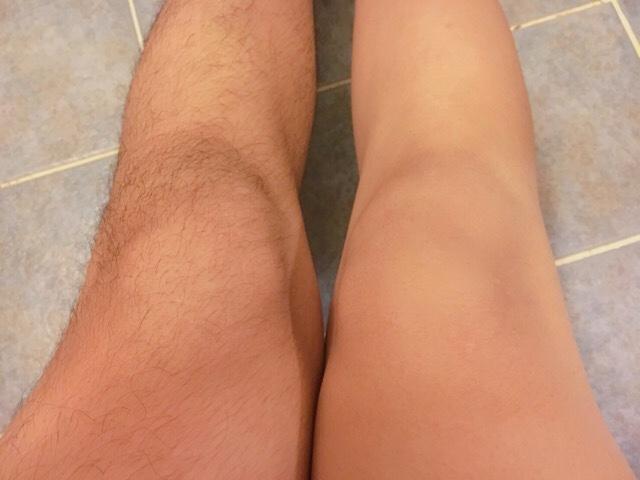 除毛クリームで足の毛(膝小僧)を処理した結果