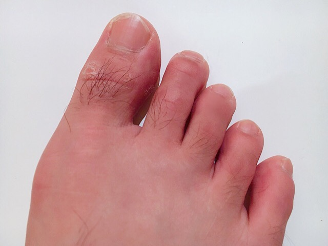 除毛クリームを塗る前の足の指毛
