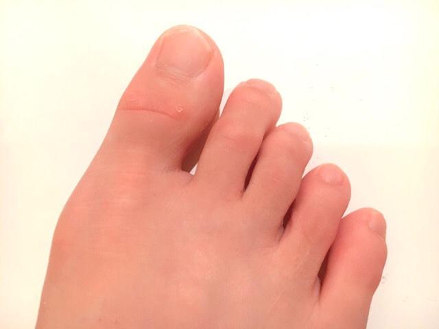 除毛クリームで足の指毛を処理した結果