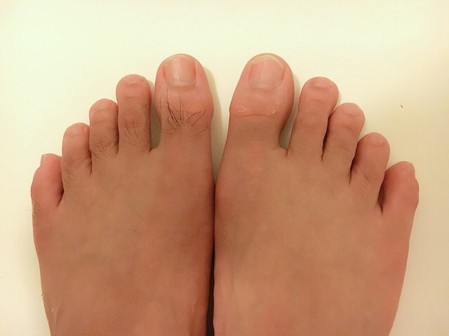 除毛クリームで足の甲の毛を処理した結果
