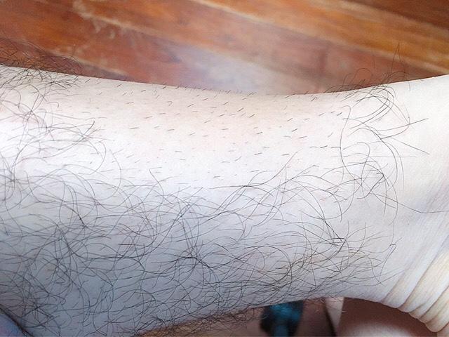 ブラジリアンワックスで脱毛から2週間後のすね毛