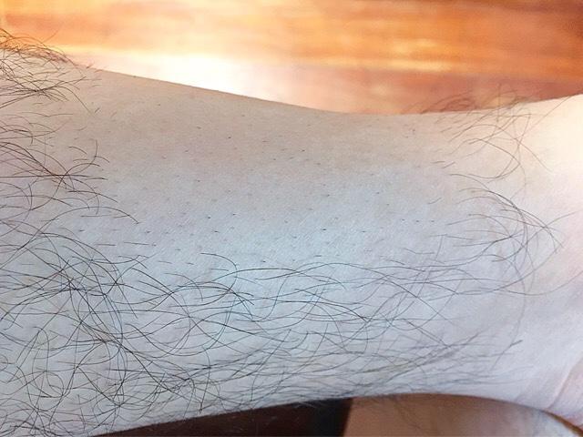 ブラジリアンワックスで脱毛から1週間後のすね毛