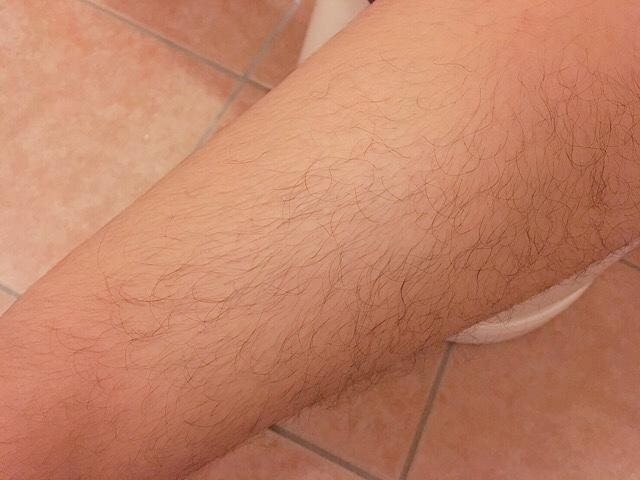 ブラジリアンワックスを使う前の足の毛(太もも)