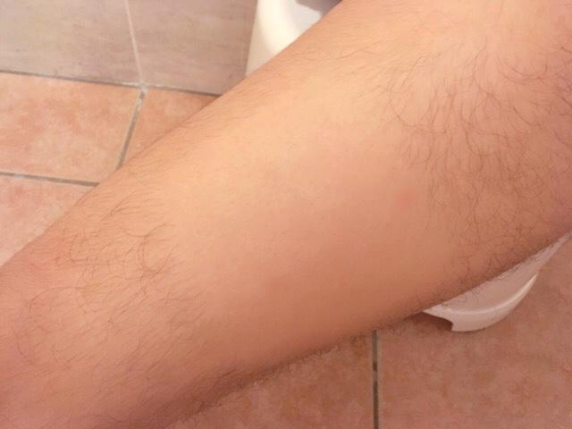 ブラジリアンワックスで足の毛(太もも)を処理した結果