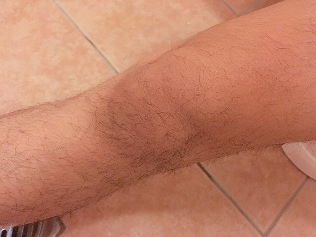 ブラジリアンワックスを使う前の足の毛(膝小僧)