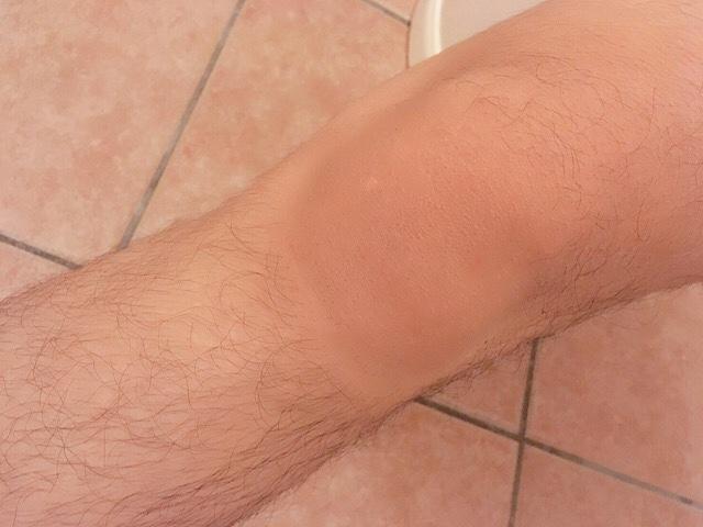 ブラジリアンワックスで足の毛(膝小僧)を処理した結果