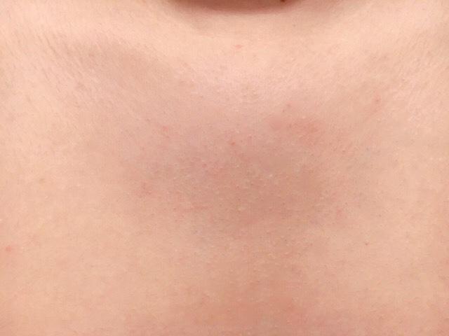 ブラジリアンワックスで胸毛を処理した結果
