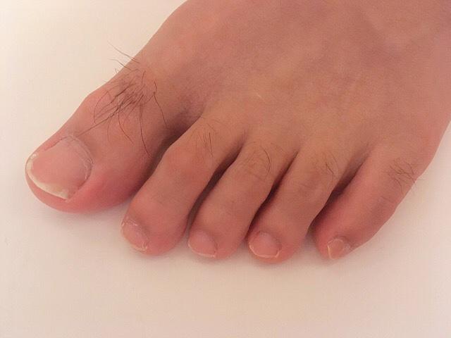 ブラジリアンワックスを使う前の足の指毛