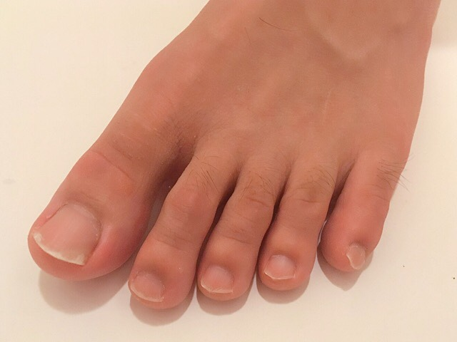 ブラジリアンワックスで足の指毛を処理した結果