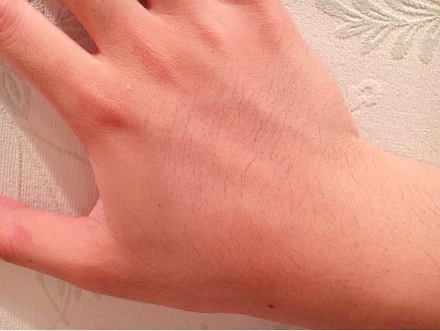 ブラジリアンワックスを使う前の手の甲の毛