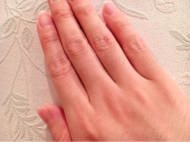 ブラジリアンワックスを使う前の指毛