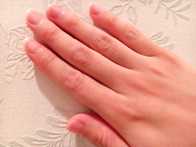 ブラジリアンワックスで手の指毛を処理した結果