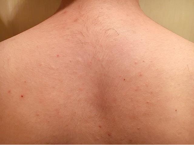 ブラジリアンワックスを使う前の背中の毛