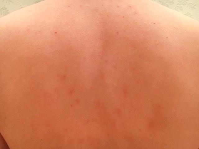 ブラジリアンワックスで背中の毛(襟足)を処理した結果