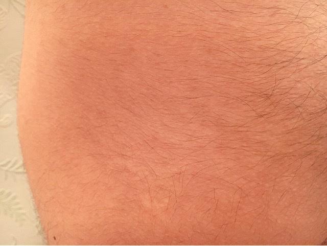 ブラジリアンワックスを使う前のケツ毛(肛門の毛)